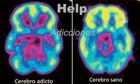 Help adicciones tratamiento de desintoxicación