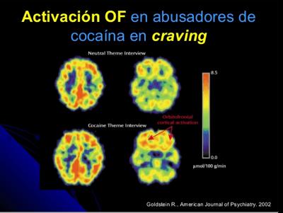 activacion-del-mecanismo-cocaina