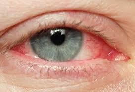 Cocaína y efecto en los ojos