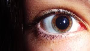 Pupila dilatada por consumo de cocaina